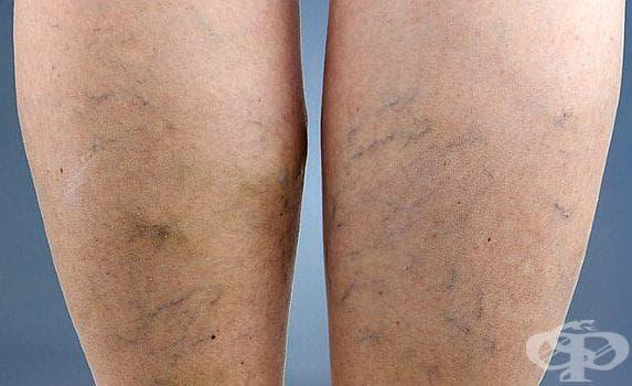 Направете си мехлем за зарастване на рани и разширени вени от зехтин, смола и восък - изображение