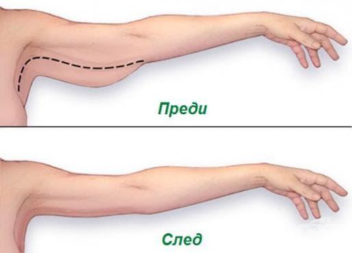 Намалете мазнините и стегнете отпуснатата кожа на ръцете по 5 лесни начина - изображение