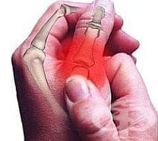 Направете си лек срещу ревматоидни болки от ракия и слънчоглед - изображение
