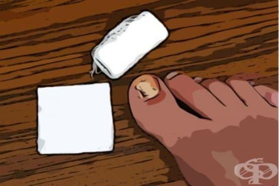 Използвайте алое, кокосово масло и масло от чаено дърво срещу врастнал нокът - изображение