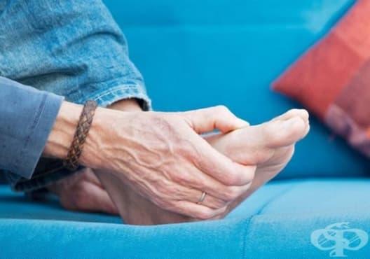 Облекчете болката, причинена от подагра, чрез 4 начина  - изображение