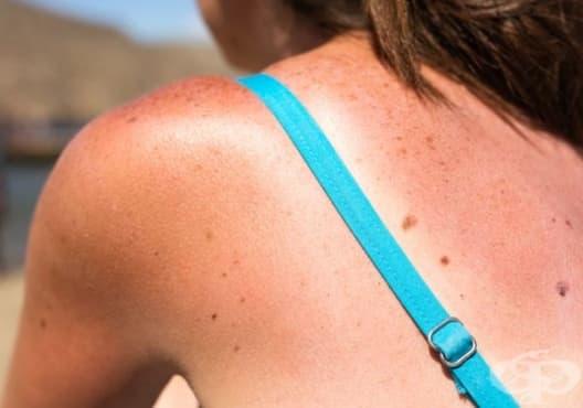 Облекчете слънчевото изгаряне с авокадо - изображение