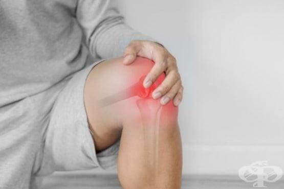 Облекчете ставните и мускулните болки с помощта на аспирин - изображение