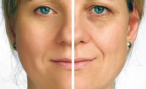 Подмладете кожата си с 4 вида маски - изображение