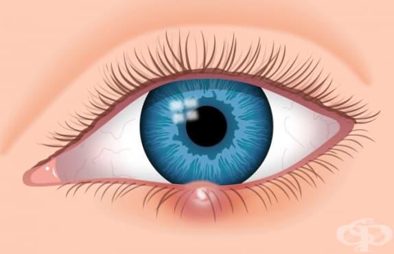 Правете компреси от магданоз срещу ечемик на окото - изображение
