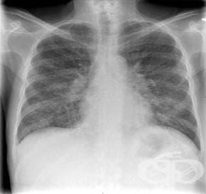 Преди да си направите рентгенова снимка, се уверете, че наистина е необходима - изображение