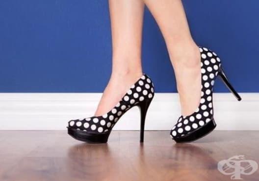 Предотвратете появата на пришки и мазоли по краката с избор на правилни обувки - изображение