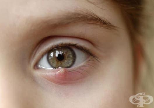 Премахнете ечемика по окото с алое вера - изображение