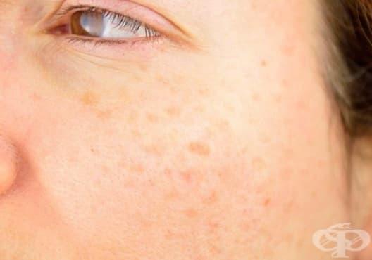 Премахнете петната по кожата с маска от мляко, картоф и куркума - изображение
