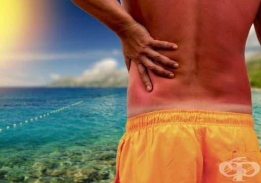 При слънчево изгаряне използвайте етерично масло от лавандула - изображение