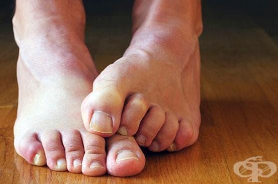 Пригответе си спрей от етерични масла против гъбички и миризма на краката - изображение