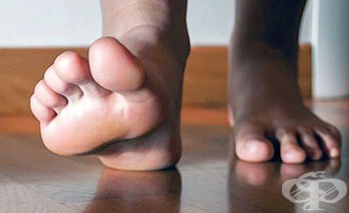 Приложете 4 метода за предпазване на краката от плоскостъпие - изображение
