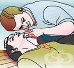 Проверете дишането на пострадалия чрез слушане или чувстване - изображение