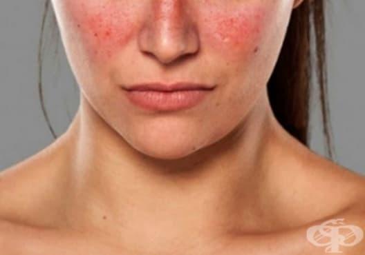 Разберете дали страдате от автоимунно заболяване чрез тези 10 признака - изображение
