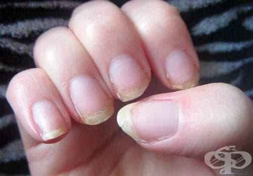 Спрете чупенето на ноктите с желатин - изображение