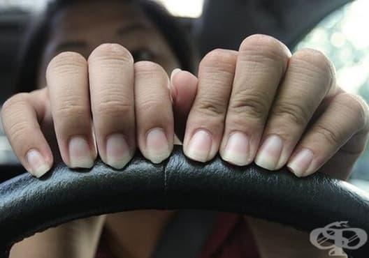 Спрете гризането на нокти с лук и зехтин - изображение