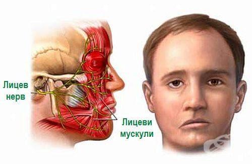 Срещу парализа на лицев нерв пийте отвара от бяла акация - изображение