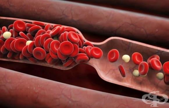 6 сигнала за опасност от тромбоза на дълбоките вени  - изображение