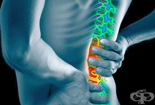 В случай на прищипан нерв използвайте 6 природни рецепти - изображение