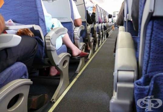Прилагайте 5 съвета, когато пътувате със самолет, за да намалите риска от венозна тромбоза - изображение