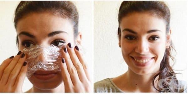 Елиминирайте черните точки по кожата с вазелин и фолио - изображение
