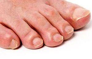 За лечение на гъбички 10 дни мажете ноктите на краката с йод - изображение