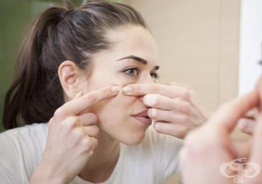 Заличете акнето по кожата с мед, оцет, лимон, рози или портокал - изображение