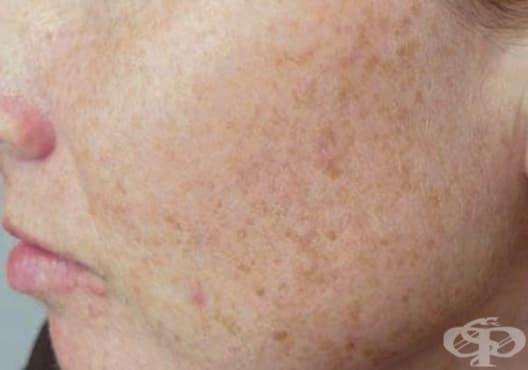 Заличете петната по кожата с кислородна вода, мляко, лимон и глицерин - изображение