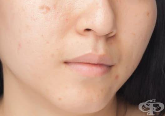 Заличете петната по кожата с мляко, лимон и алое вера - изображение