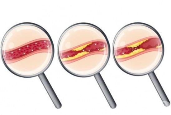 Избягвайте 12 храни, които могат да доведат до запушване на артериите - изображение