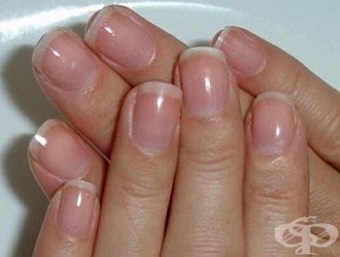 Заздравете меките и тънки нокти със сода и йод - изображение