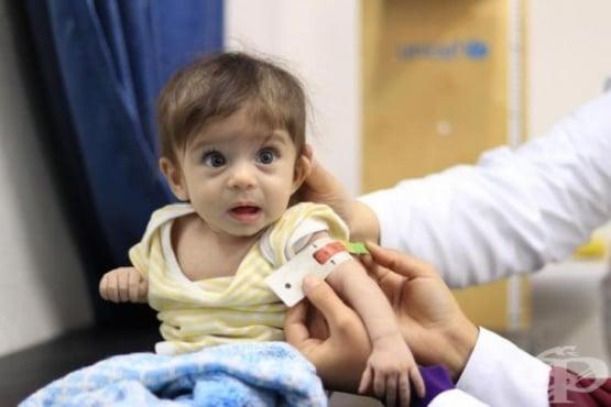 УНИЦЕФ: 6 700 000 деца по света ще са жертви на опасно недохранване заради COVID-19 - изображение