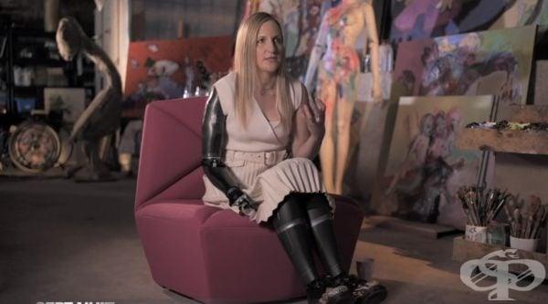 Присил Дебора – французойката с бионична ръка, която научи всичко за щастието да живееш - изображение