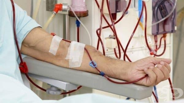 Хемодиализният пациент Стоян Русков: Започвам гладна стачка, защото ми омръзна да се гаврят с нас - изображение