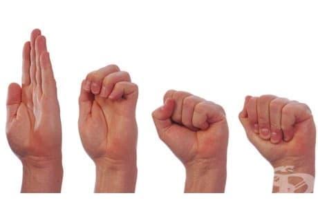 Упражнения за възстановяване след счупване на пръст на ръката - изображение