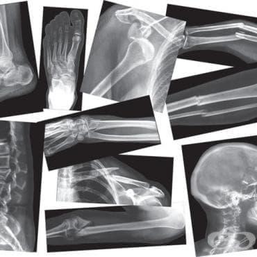 Травми на костите в спорта - изображение