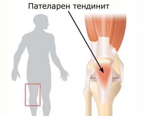 Пателарен тендинит (коляно на скачач) - изображение