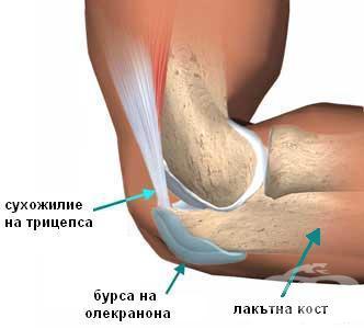 Бурсит локтевого сустава: лечение