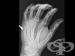 Счупвания в областта на китката, дланта и пръстите при спортисти - изображение