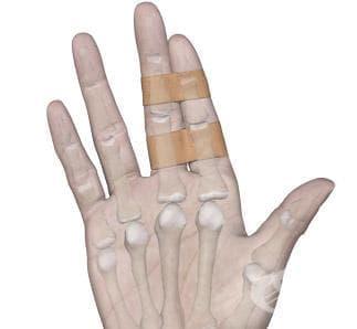 Спортен тейпинг на пръстите на ръката - изображение