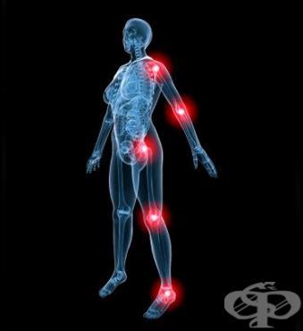 Спортни травми в различните части на тялото - изображение
