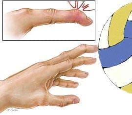 Навяхване и изкълчване на пръстите на ръката при спорт - изображение