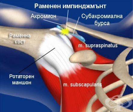 Раменен импинджмънт в спорта (Impingement Syndrome) - изображение