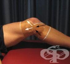 Спортен тейпинг на коляно - изображение