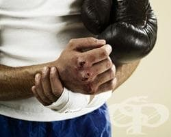 Травма на метакарпофалангеалните стави при спортисти (нараняване на кокалчетата на ръката) - изображение