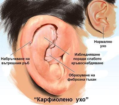 Травма на външното ухо при спортисти - изображение
