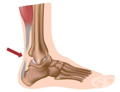 Травма и скъсване на ахилесовото сухожилие в спорта - изображение