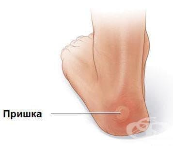 Травматични кожни мехури при спорт (пришки) - изображение