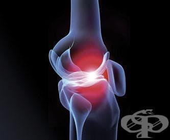 Травми на коляното - изображение