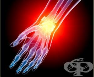 Травми на китката и пръстите - изображение
